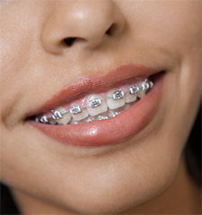 Accelerated Orthodontics