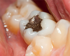 discolored fillings